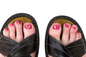 https://cf.ltkcdn.net/skincare/images/slide/138862-849x565r1-Daisy-toes.jpg