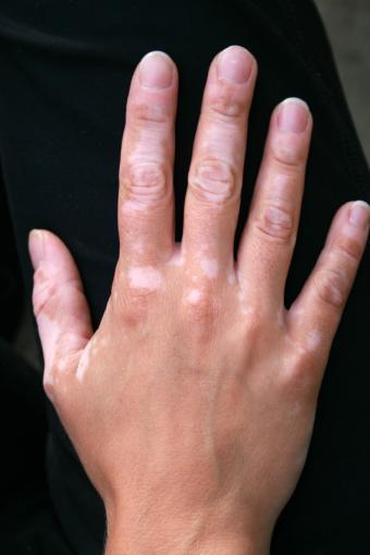 https://cf.ltkcdn.net/skincare/images/slide/146062-566x848r1-skin-disorder-vitiligo.jpg