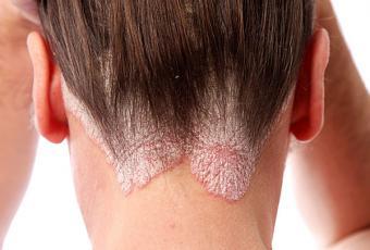 https://cf.ltkcdn.net/skincare/images/slide/147506-600x405-Dermatitis.jpg