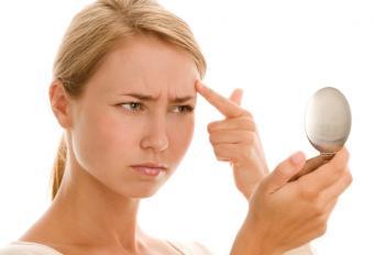 Cure a Pimple Overnight