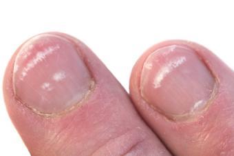 finger nail Problem