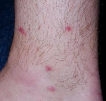 https://cf.ltkcdn.net/skincare/images/slide/167095-805x771-swimmersitch_CercariaDermatitis.JPG