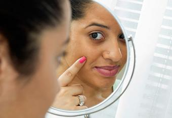 How to Remove Dark Circles From Under Eyes in Black Skin