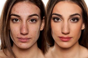 Before and after acne