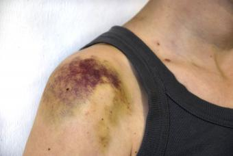 Hard Lump Under Skin After a Bad Bruise