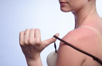 Woman with sunburned skin
