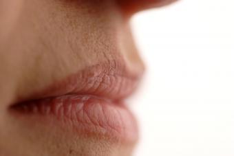 Cracked Corners of Lips