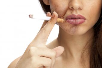 smoker's wrinkles