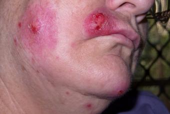 https://cf.ltkcdn.net/skincare/images/slide/214748-850x567-Staph-infection-on-face.jpg