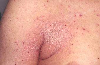 Crusted scabies