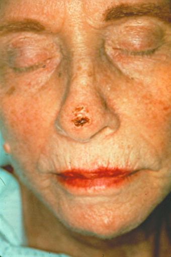 https://cf.ltkcdn.net/skincare/images/slide/216761-565x850-SCC-Nose.jpg