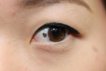 https://cf.ltkcdn.net/skincare/images/slide/217549-850x567-mole-on-eye.jpg