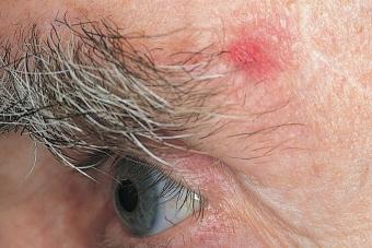 https://cf.ltkcdn.net/skincare/images/slide/217593-850x567-SCF-BCC-reddish-patch-eye.jpg