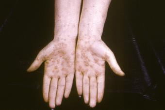 outbreak of palmar syphilids