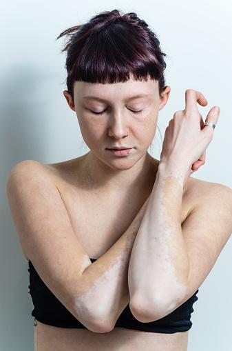 vitiligo affected young woman