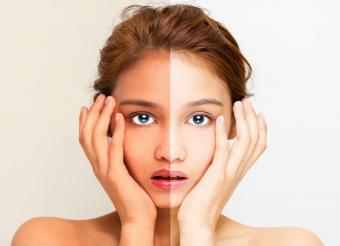 woman half white half dark face