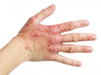 hand of woman with eczema