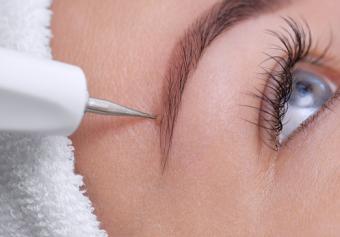 treatment on eyebrow mole