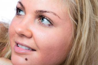 woman with mole on chin