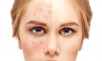 Girl with acne problem