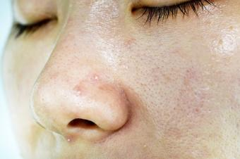 womans face with blackheads