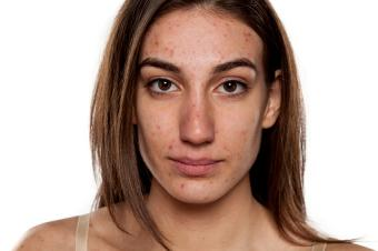 young woman with problematic skin