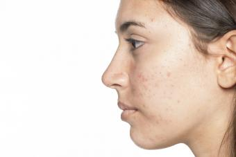 Profile of young girl with acne