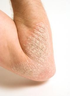 Psoriasis on a man's arm