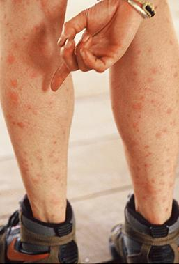 Man with multiple mosquito bites on his legs
