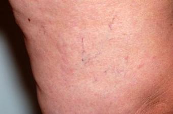 Spider veins showing through the skin