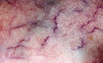 Varicose veins showing through the skin
