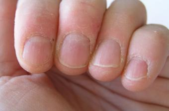 Compulsive Skin Picking Cuticles