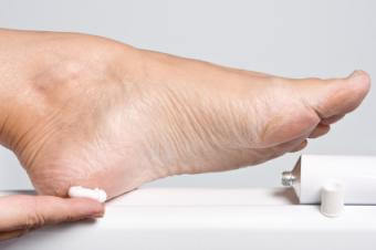 Repair for Cracked Heels