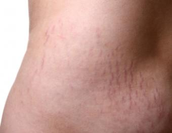 Can Stretch Marks Go Away?