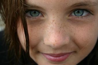 Freckled face girl