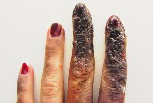 https://cf.ltkcdn.net/skincare/images/slide/47290-315x213-scalded-hand.jpg
