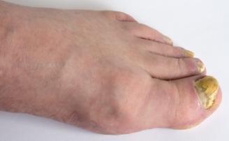 https://cf.ltkcdn.net/skincare/images/slide/47291-328x202-toe-fungus.jpg