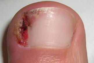 https://cf.ltkcdn.net/skincare/images/slide/47294-324x218-ingrown-nail.jpg