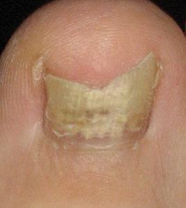 https://cf.ltkcdn.net/skincare/images/slide/47295-268x299-toe-fungus2.jpg