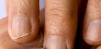 https://cf.ltkcdn.net/skincare/images/slide/47296-376x186-nail-ridges2.jpg