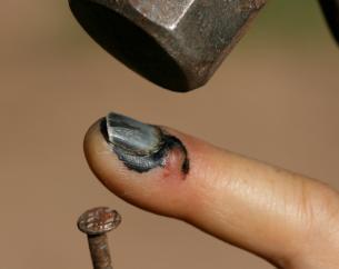 https://cf.ltkcdn.net/skincare/images/slide/47297-305x242-nail-hematoma.jpg