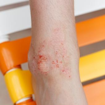 https://cf.ltkcdn.net/skincare/images/slide/47538-566x567-eczema_ankle.jpg