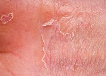 https://cf.ltkcdn.net/skincare/images/slide/47540-786x565-peeling_eczema.jpg