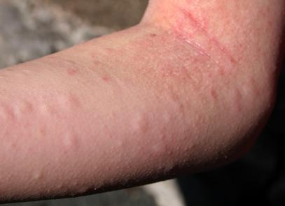 allergic reaction on skin