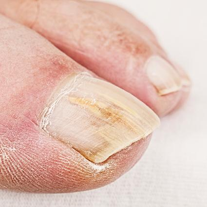 Absolute Cure for Nail Fungus | LoveToKnow