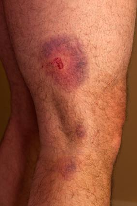 penis bruise and bump
