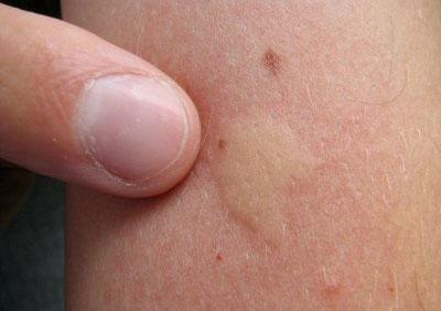 Mosquito bite swelling
