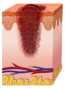 stage 2 melanoma