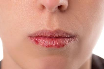 Woman with dry lips