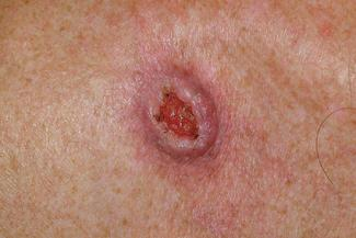 Five Signs Of Skin Cancer Lovetoknow